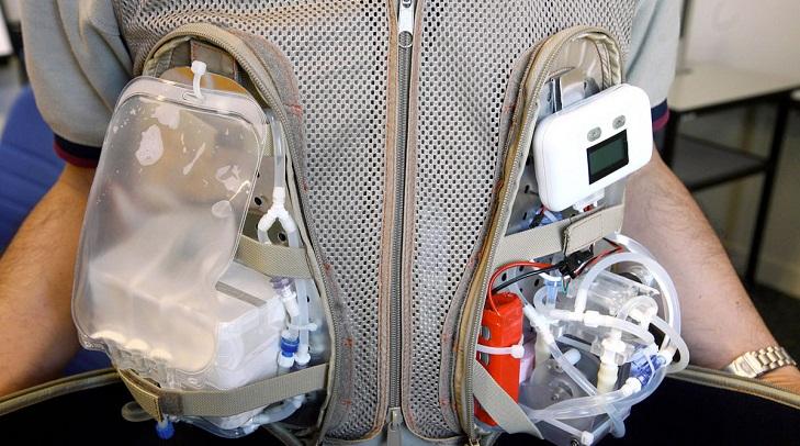 Artificial kidneys will end transplantation crisis | Last